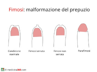 Malattia di Peyronie (pene curvo): cause, sintomi e cura ...