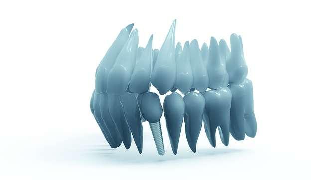 Impianto dente